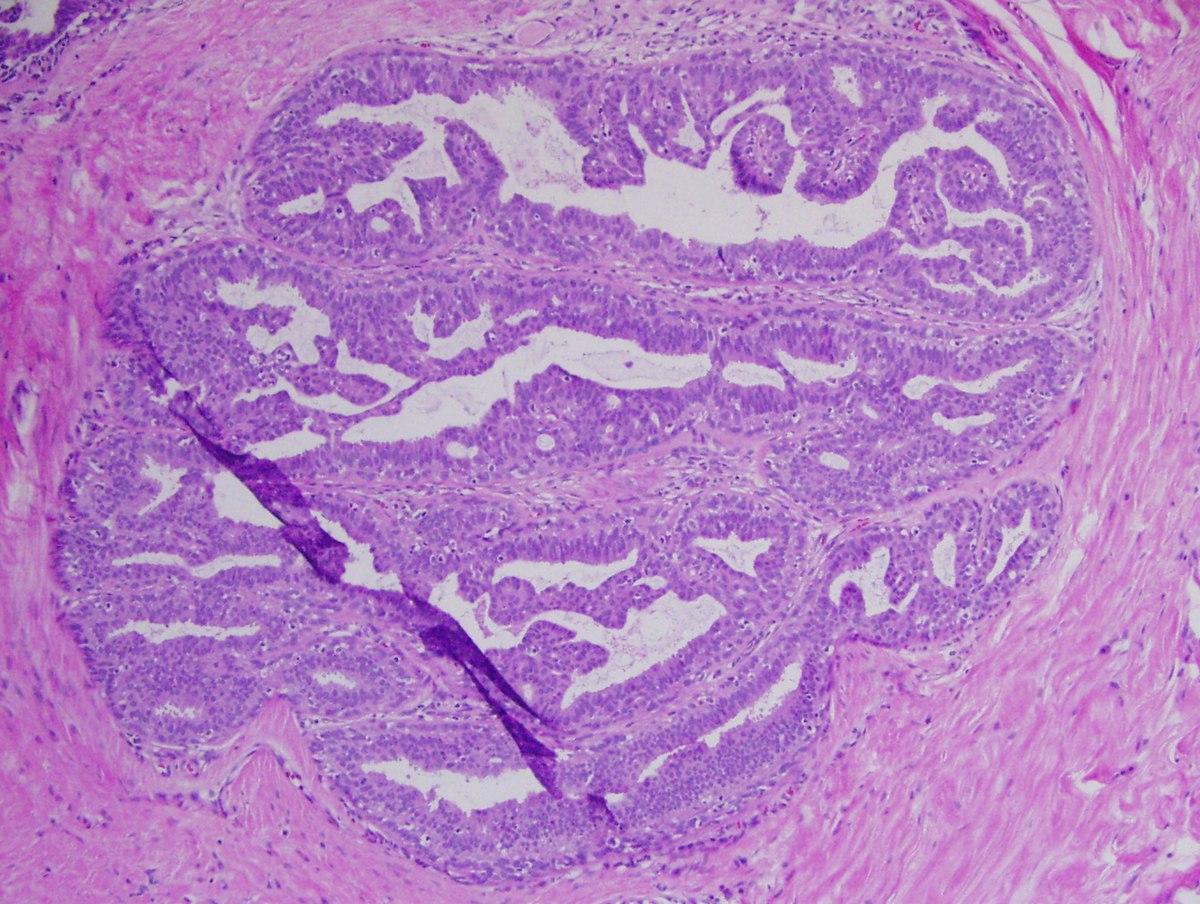 papillomatous epidermal hyperplasia)