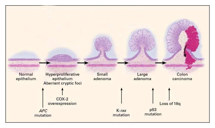 cancer colon progression)