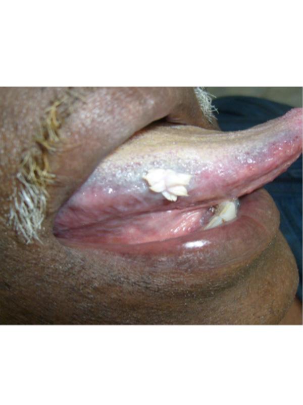 squamous papilloma on tongue treatment)