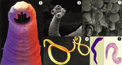 Gliste crevni paraziti. Hpv wart plantar