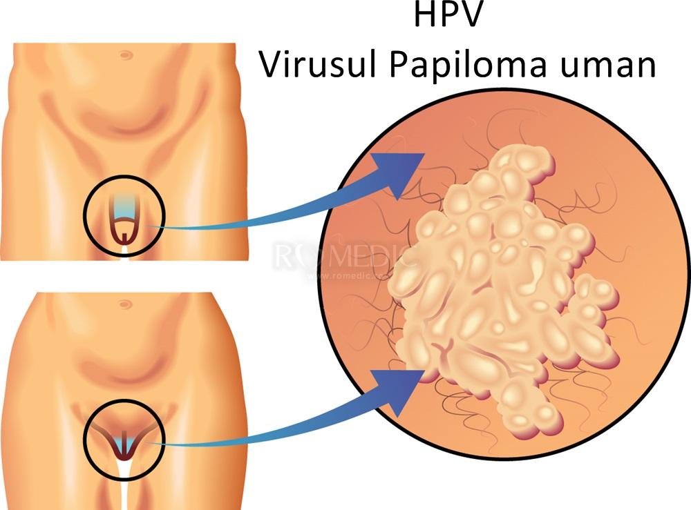 cum arată virusul papiloma