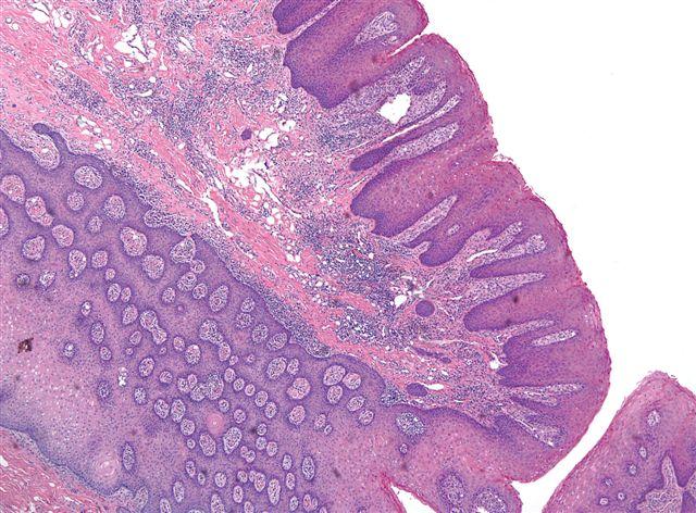 Squamous cell papilloma histopathology, Conjunctival squamous papilloma histopathology. Enviado por