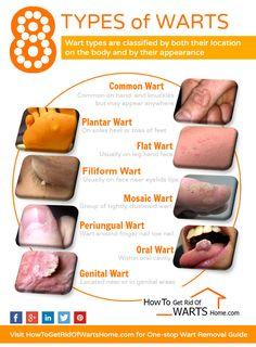 foot wart types)