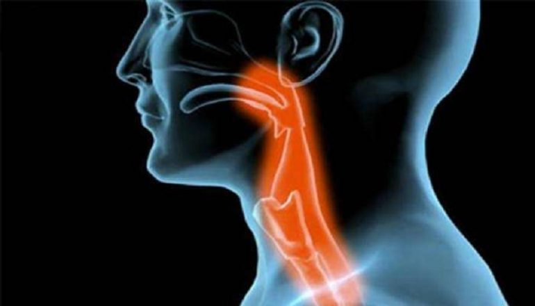 Dictionar italiana-romana Virus hpv e tumore alla gola Tumore alla gola papilloma virus