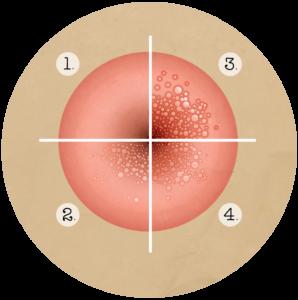 papillomavirus stade 3 et grossesse)