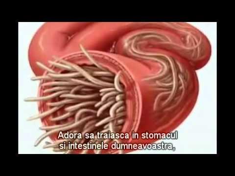 viermi umane simptome ca un tratament)