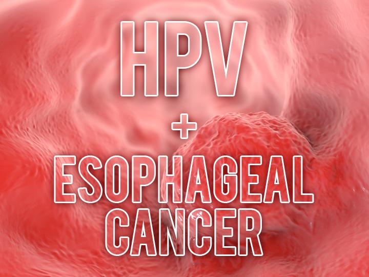hpv esophageal cancer prognosis)
