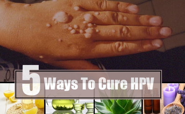 Cure for human papilloma virus Natural treatment for human papillomavirus - Case Report