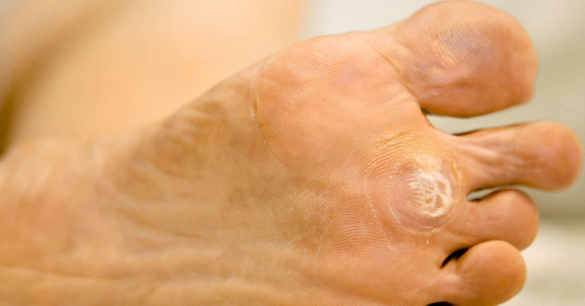 wart under foot treatment)