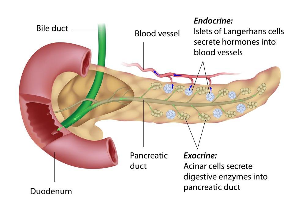 pancreatic cancer exocrine
