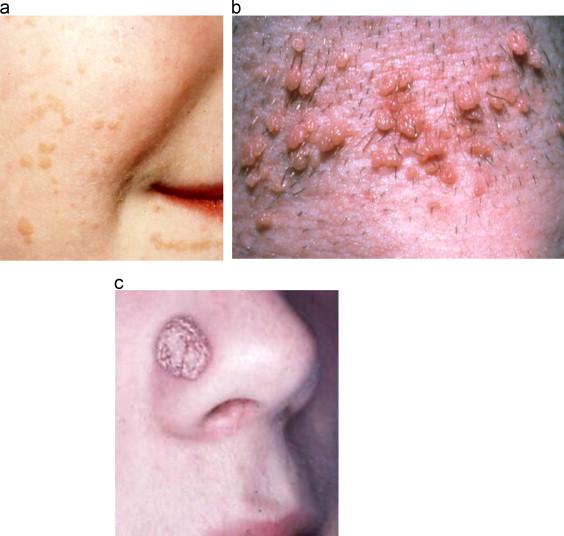 Human papillomavirus symptoms throat, Account Options - Papillomaviridae symptoms