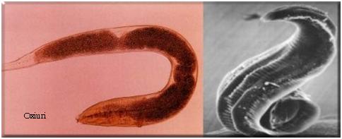 mâncărime în anus ca tratament pentru viermi