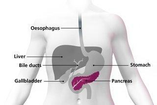 Dysbiosis symptoms nhs, Cancer limfatic leucemie, Leucemia limfatica cronica