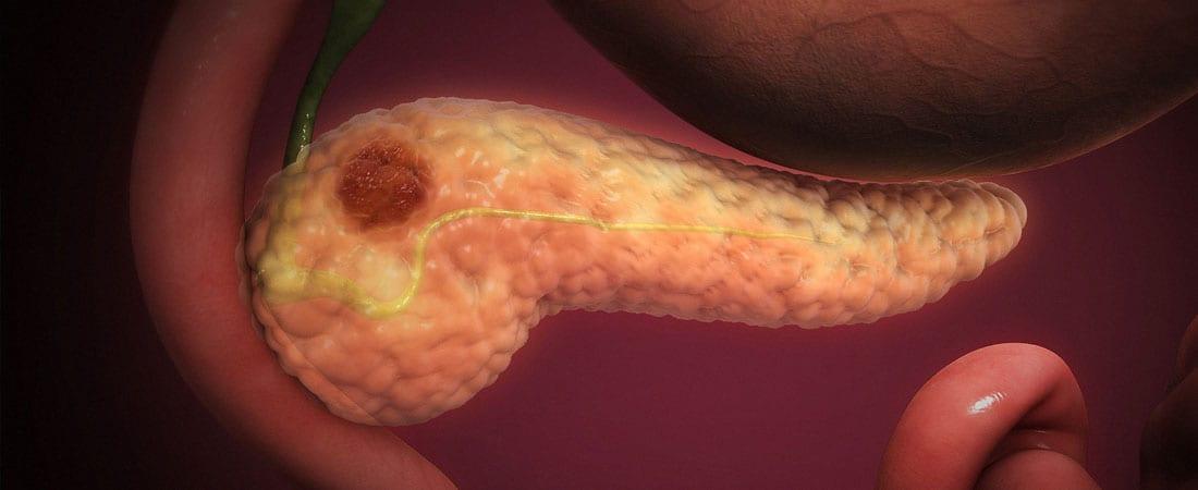 Cancerul de pancreas, un cancer deosebit de agresiv / Interviu dr. Valeria Văleanu ⋆ Sibiu %