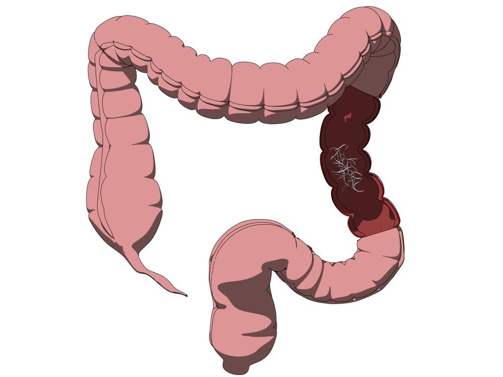 paraziți în stomac în timpul sarcinii