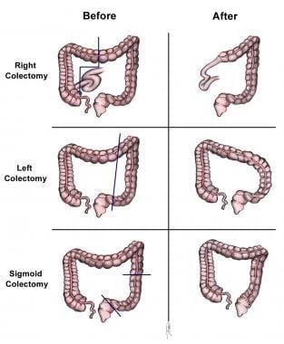 Cancerul colorectal în sarcină Cancer colon constipation