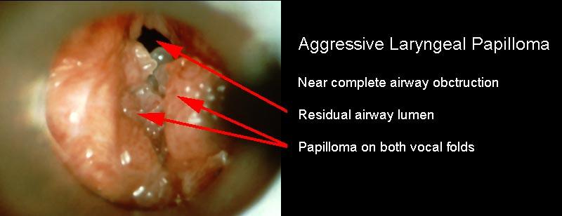 airway papillomas human papilloma virus in swahili