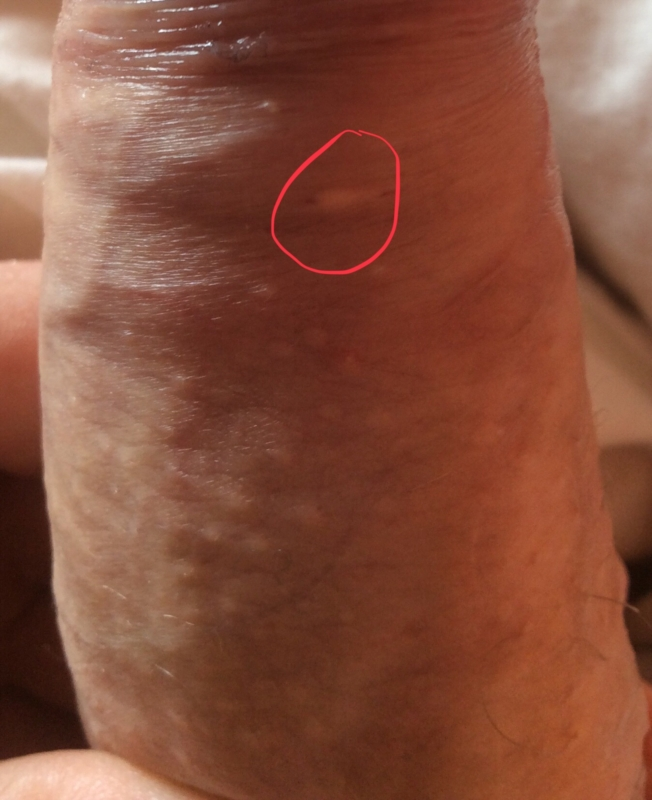 papilloma genital