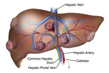 Cancerul de ficat – cauze si diagnostic