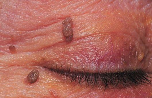 treatments for papillomas)