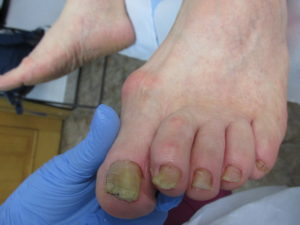 ulcerele dintre degetele de la picioare cauzează
