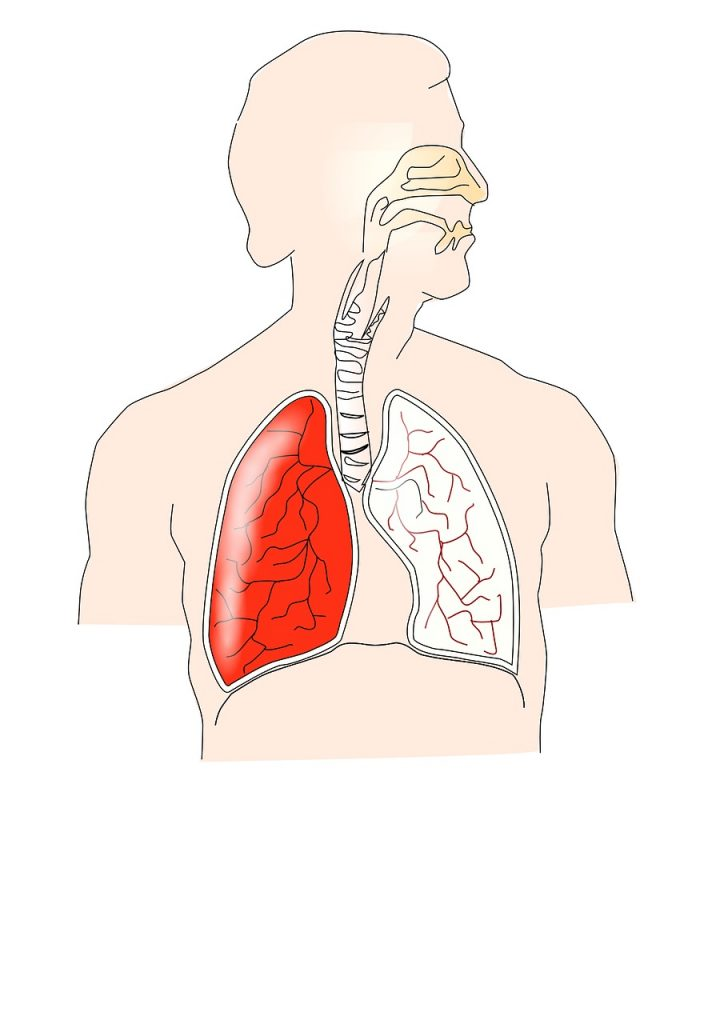 simptome cancer la plamani tratament