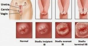 condiloame plate pe tratamentul colului uterin