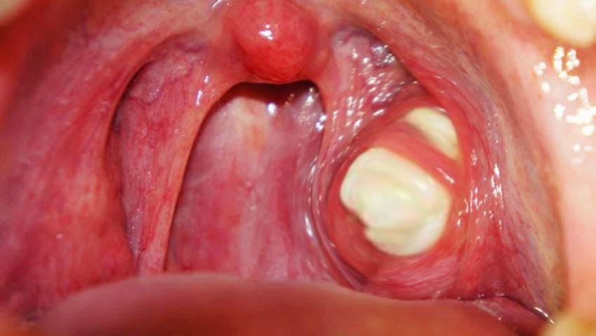respiratie urat mirositoare amigdale)
