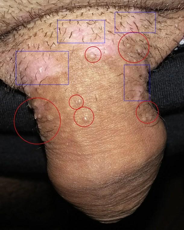 papillomavirus sur un homme