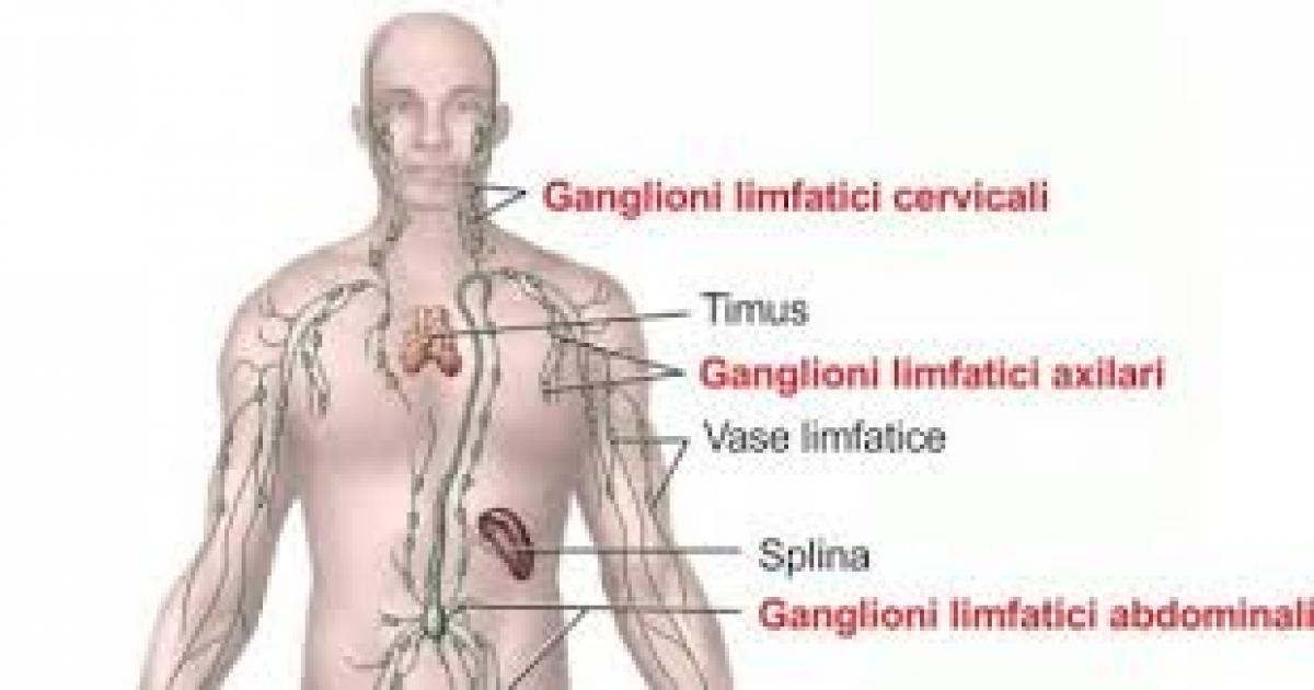 simptome cancer limfatic copii vestibular papillomatosis patient handout