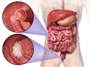 peritoneal cancer kya hai