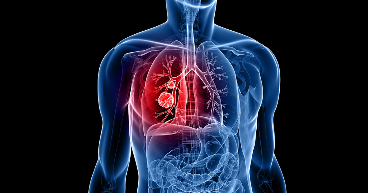 Cancer pulmonar