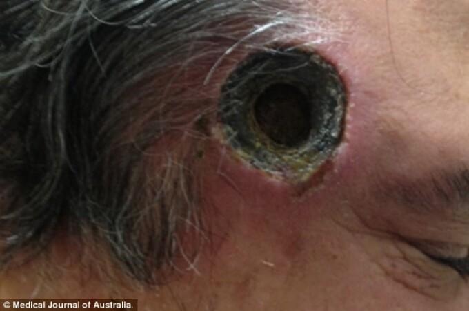 Cele mai ciudate zone unde se dezvolta cancerul de piele