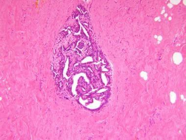 intraductal papilloma patient uk)