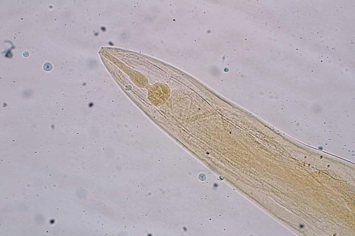 Ectopic enterobiasis. Viermi dermatite la copii