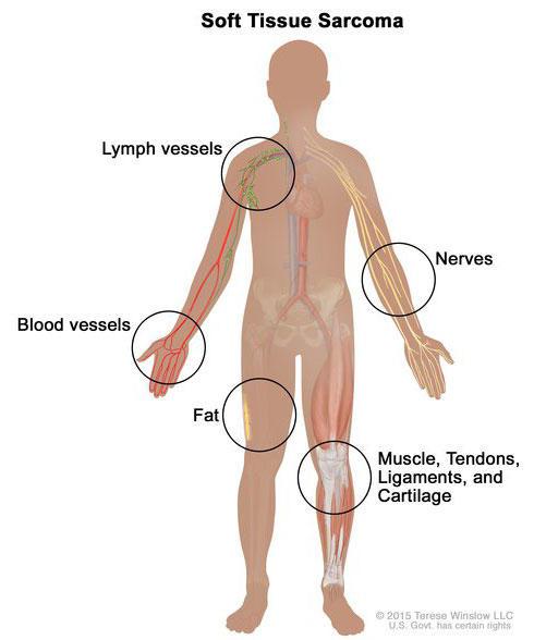 cancer sarcoma de)