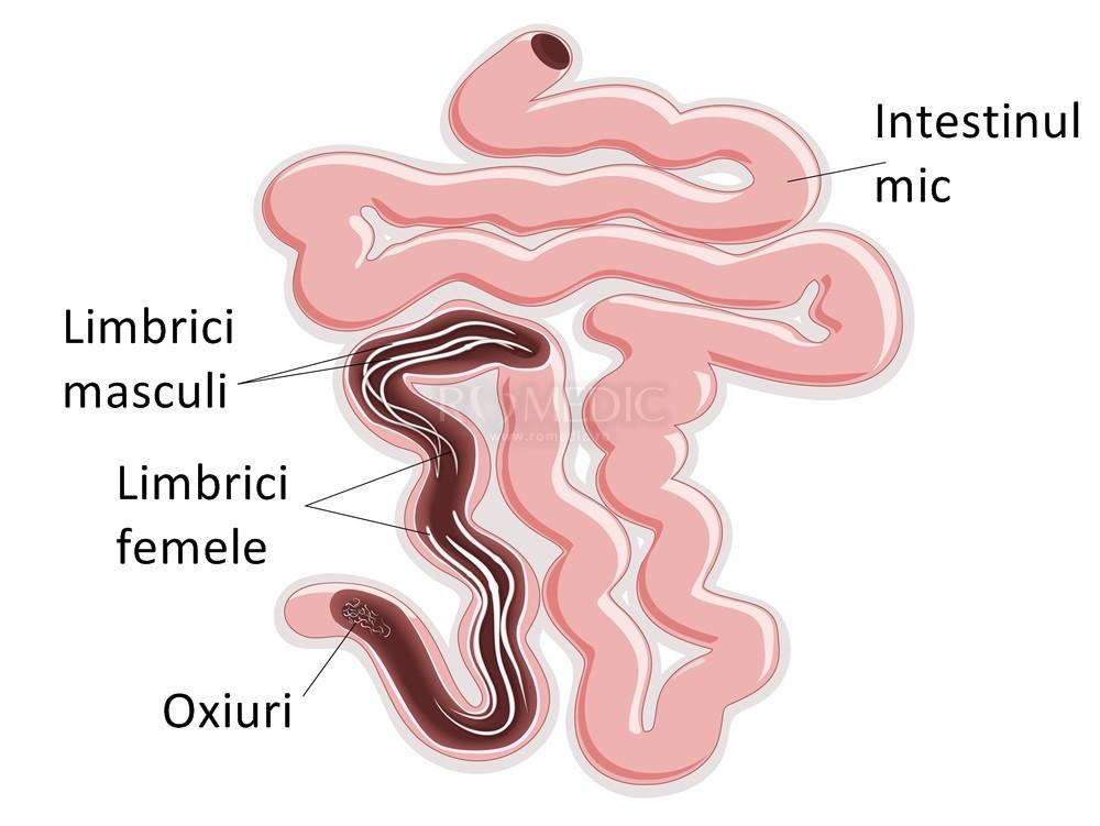 viermi din vezica urinară a unui copil