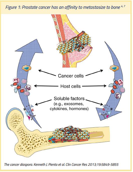 cancer metastatic death
