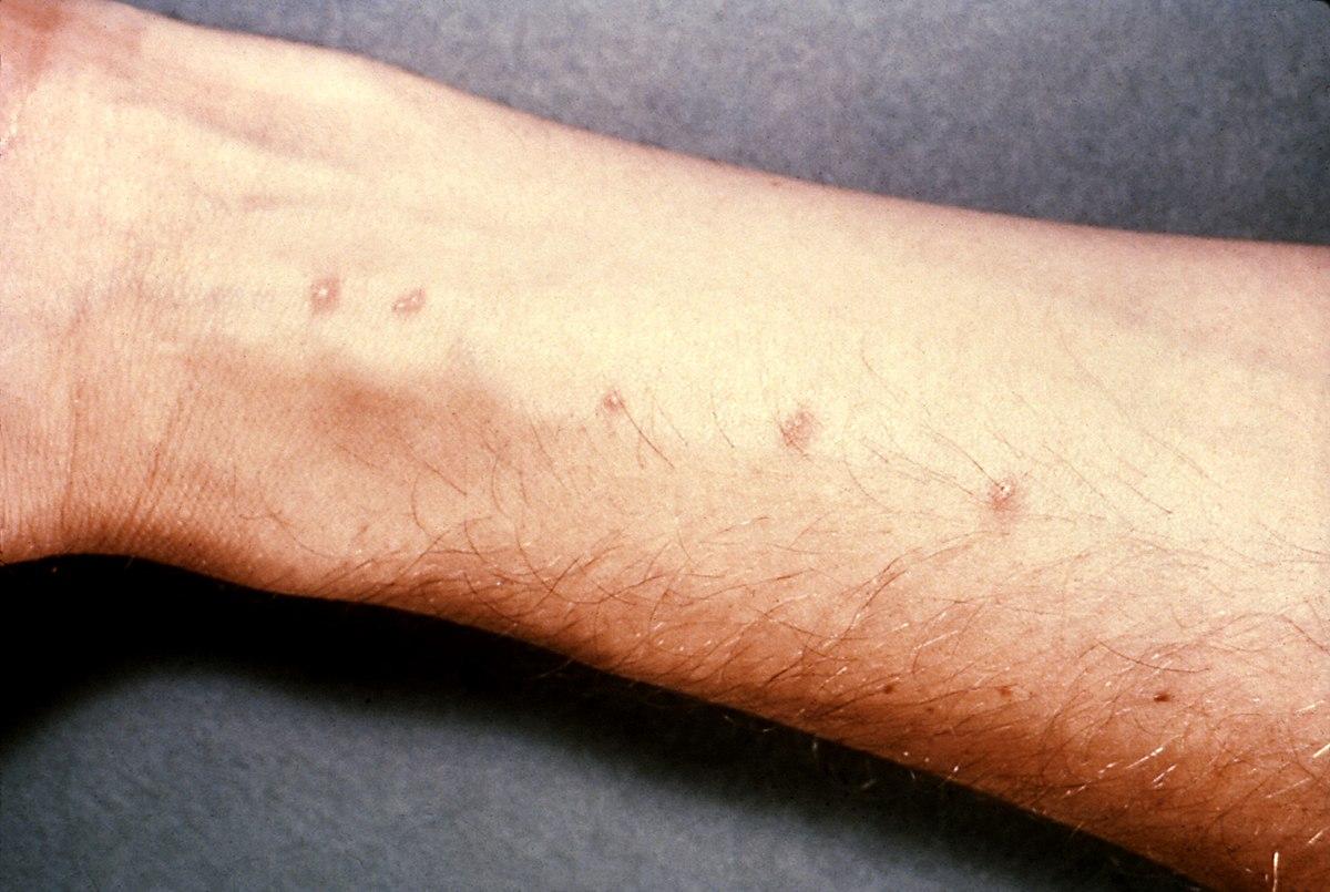schistosomiasis klachten