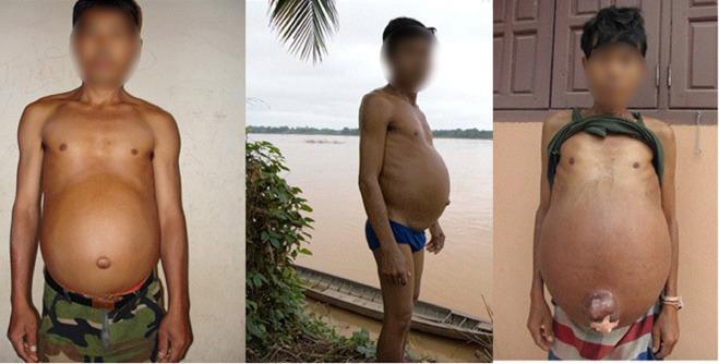 schistosomiasis patient