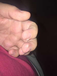 warts on hands in pregnancy)