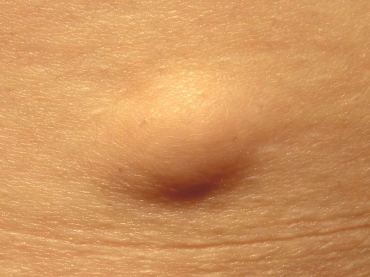 can intraductal papilloma go away by itself