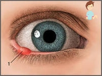papilloma virus occhi)