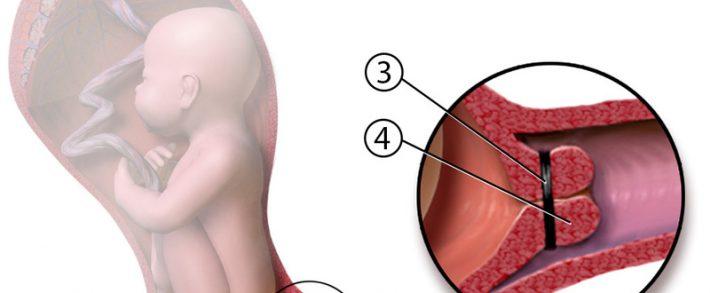 nastere cu condiloame pe colul uterin