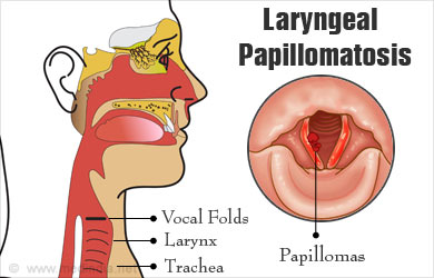 laryngeal papillomatosis in lungs