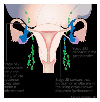 Peritoneal cancer lymph nodes