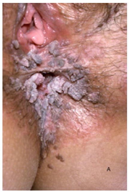 condilom alb genital
