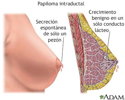 que es papiloma de seno