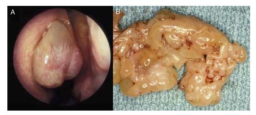 papiloma nasal maligno