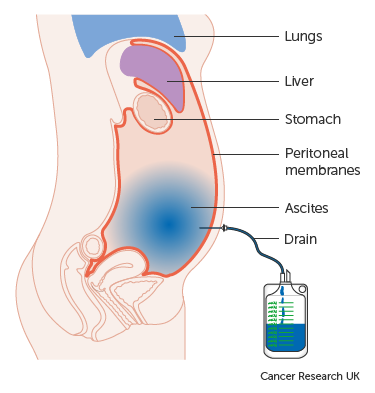 cancer peritoneal lining)